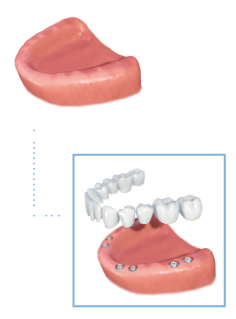 Full arch treatment demonstration graphic