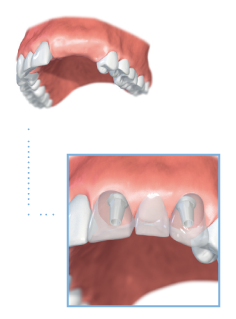 Multiple implant illustration