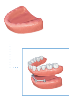 Removable denture illustration