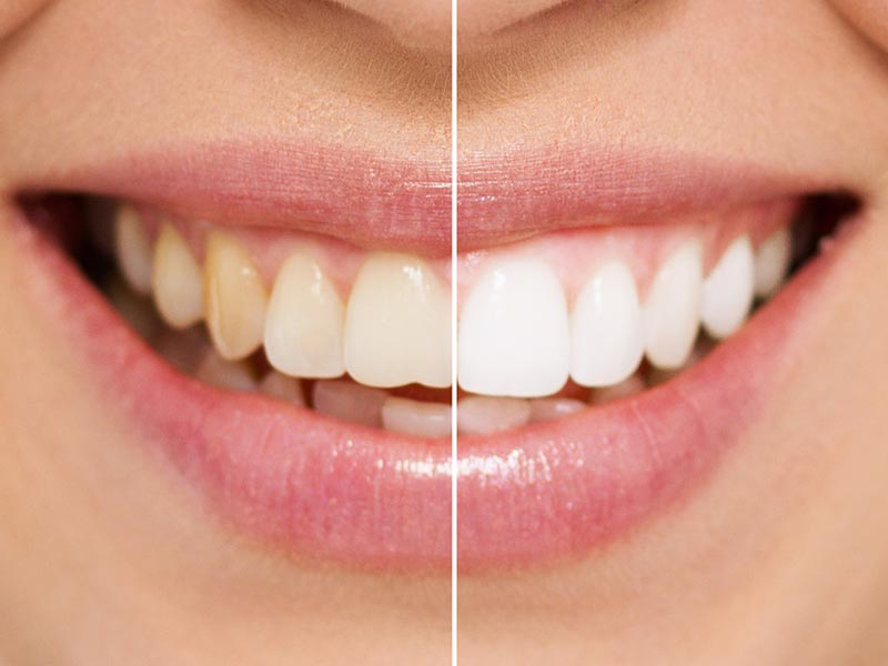 before and after shot of home teeth whitening system