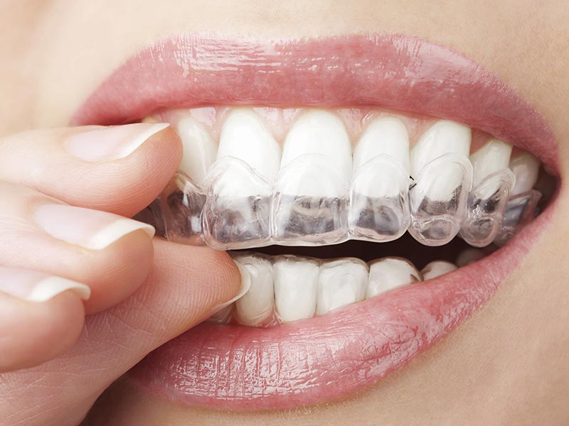 Closeup invisalign insertion