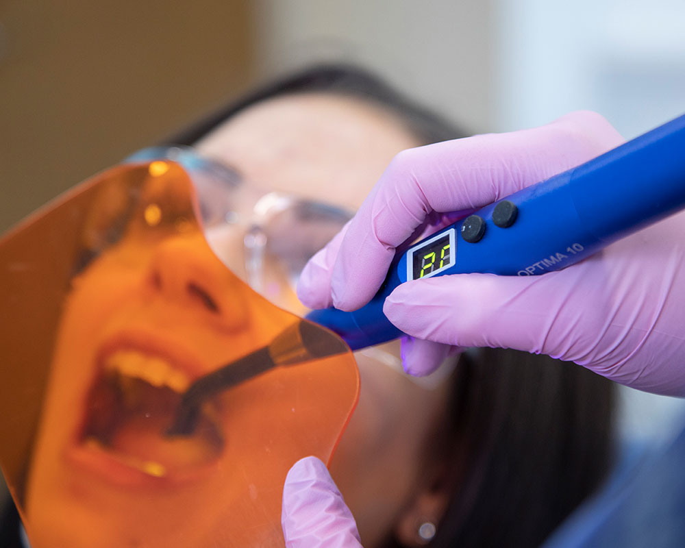 dentist light cures a patient's tooth