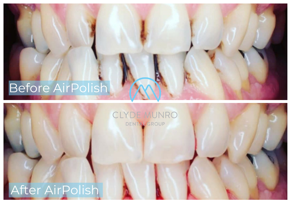 Air Polish Before and After